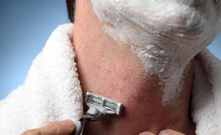 shaving-irritation.png